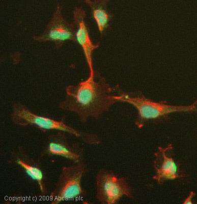 Immunocytochemistry/ Immunofluorescence - Menin antibody (ab31902)
