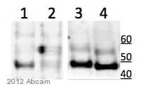 Western blot - Anti-MAPKAP Kinase 2  antibody [E341] (ab32567)