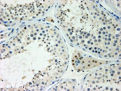 Immunohistochemistry (Formalin/PFA-fixed paraffin-embedded sections) - Anti-Atrophin 1 antibody (ab32604)