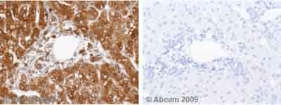 Immunohistochemistry (Formalin/PFA-fixed paraffin-embedded sections) - GRP78 BiP antibody (ab32618)