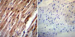 Immunohistochemistry (Formalin/PFA-fixed paraffin-embedded sections)-Anti-HCN4 antibody [SHG 1E5](ab32675)