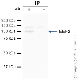Immunoprecipitation - Anti-EEF2 antibody (ab33523)