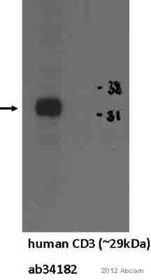 Western blot - Anti-CD3 antibody [SPV-T3b] (ab34182)