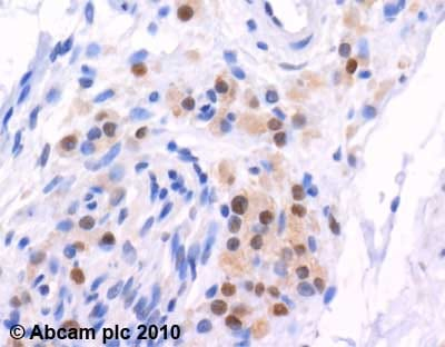 Immunohistochemistry (Formalin/PFA-fixed paraffin-embedded sections)-E1 Ubiquitin Activating Enzyme antibody(ab34711)