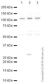 Western blot - JHDM1D antibody (ab36044)