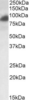 Western blot - RAB11FIP1 antibody (ab36124)