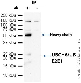 Immunoprecipitation - Anti-UBCH6/UBE2E1 antibody (ab36980)