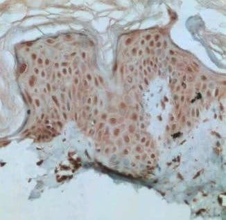 Immunohistochemistry (Formalin/PFA-fixed paraffin-embedded sections) - XBP1 antibody (ab37152)