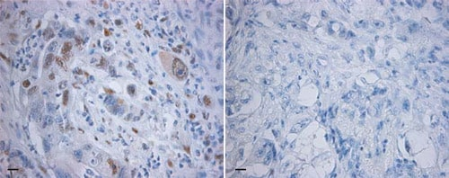 Immunohistochemistry (Formalin/PFA-fixed paraffin-embedded sections) - Anti-BCL9 antibody (ab37305)