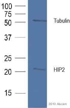 Western blot - HIP2 antibody (ab37917)