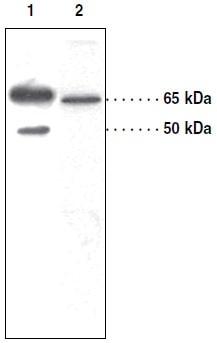 Western blot - Anti-SOAT 1 antibody (ab39327)