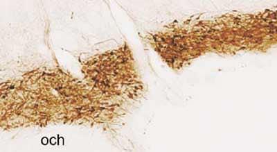 Immunohistochemistry (PFA perfusion fixed frozen sections) - Vasopressin antibody (ab39363)