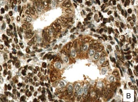 Immunohistochemistry (Formalin/PFA-fixed paraffin-embedded sections) - Anti-G-protein coupled receptor 30 antibody (ab39742)