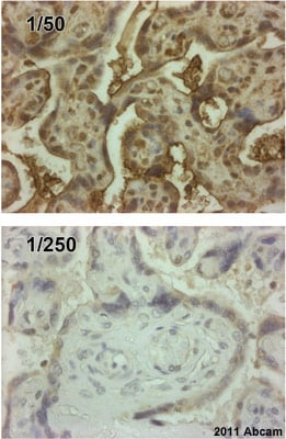 Immunohistochemistry (Formalin/PFA-fixed paraffin-embedded sections) - Anti-Endothelin B Receptor antibody (ab39960)