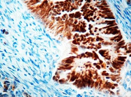 Immunohistochemistry (Formalin/PFA-fixed paraffin-embedded sections) - Anti-p53 antibody (ab4060)