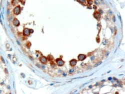 Immunohistochemistry (Formalin/PFA-fixed paraffin-embedded sections) - ALMS1 antibody (ab4306)