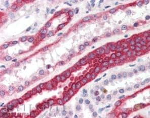 Immunohistochemistry (Formalin/PFA-fixed paraffin-embedded sections) - RNF34 antibody (ab4363)