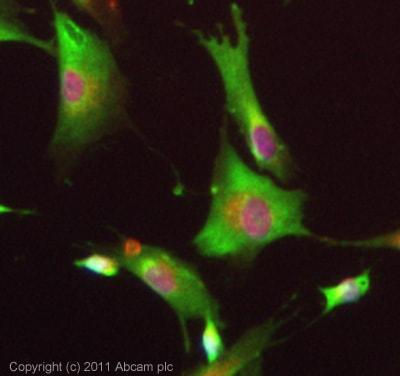 Immunocytochemistry/ Immunofluorescence - Anti-Dopamine Receptor D5 antibody (ab40656)