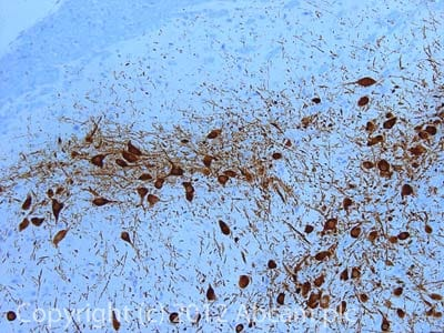 Immunohistochemistry (Formalin/PFA-fixed paraffin-embedded sections) - Anti-Tyrosine Hydroxylase antibody - Neuronal Marker (ab41528)