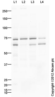 Western blot - Anti-Tyrosine Hydroxylase antibody - Neuronal Marker (ab41528)