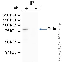 Immunoprecipitation - Anti-Ezrin antibody (ab41672)