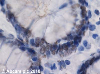 Immunohistochemistry (Formalin/PFA-fixed paraffin-embedded sections)-RIP140 antibody - Carboxyterminal end(ab42126)