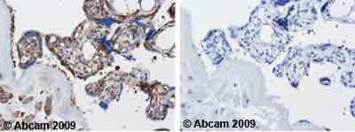 Immunohistochemistry (Formalin/PFA-fixed paraffin-embedded sections) - Tubulin antibody [DM1A +DM1B] (ab44928)