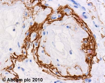 Immunohistochemistry (Formalin/PFA-fixed paraffin-embedded sections)-Hrk antibody(ab45419)