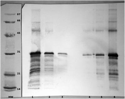 Western blot - Anti-Angiopoietin-like 4 antibody (ab47046)