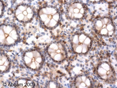 Immunohistochemistry (Formalin/PFA-fixed paraffin-embedded sections)-ERK1 (phospho T202) antibody(ab47310)