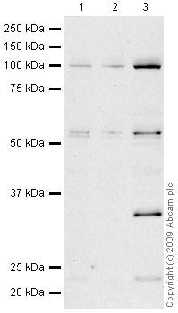 Western blot - CCR4 antibody (ab47553)