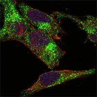Immunocytochemistry/ Immunofluorescence - Inhibin alpha antibody [4A2F2] (ab47720)