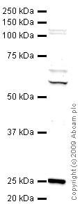 Western blot - Ctk1 antibody (ab47812)
