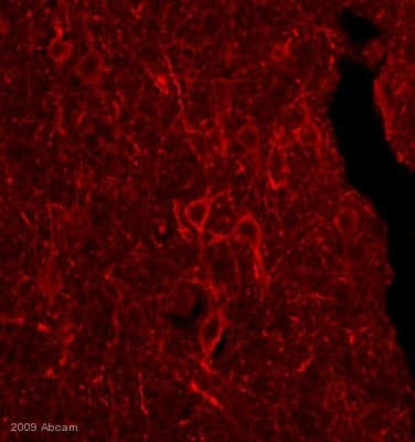 Immunocytochemistry/ Immunofluorescence - Goat polyclonal Secondary Antibody to Mouse IgG+IgM - H&L (Biotin), pre-adsorbed (ab47844)