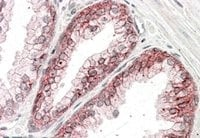 Immunohistochemistry (Formalin/PFA-fixed paraffin-embedded sections) - Anti-alpha 1 Catenin antibody (ab48034)