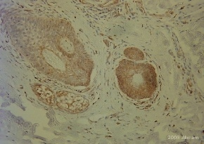 Immunohistochemistry (Formalin/PFA-fixed paraffin-embedded sections) - Semaphorin 3B antibody (ab48197)