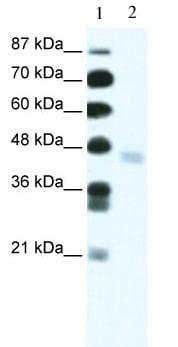 Western blot - ZNF312 antibody (ab49245)