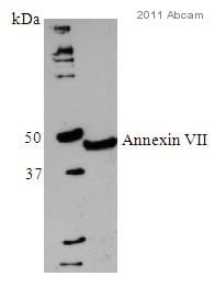 Western blot - Annexin VII antibody [203-217/6] (ab49838)