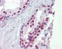 Immunohistochemistry (Formalin/PFA-fixed paraffin-embedded sections) - Anti-FOXA1 antibody - ChIP Grade (ab5089)