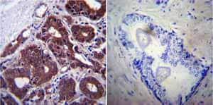 Immunohistochemistry (Formalin/PFA-fixed paraffin-embedded sections)-Anti-Hsp70 antibody [2A4](ab5442)