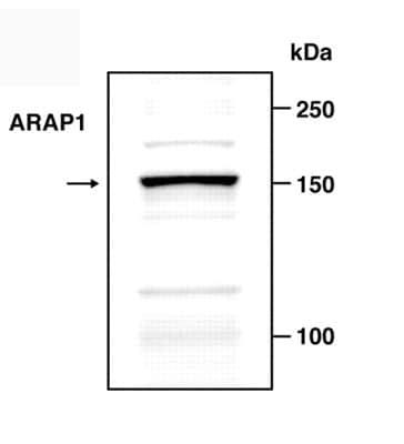 Western blot - ARAP1 antibody (ab5912)