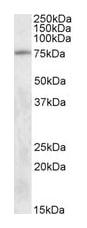 Western blot - TAK1 antibody (ab50431)