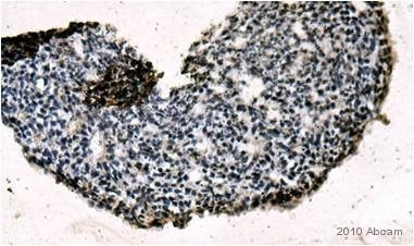 Immunohistochemistry (Formalin/PFA-fixed paraffin-embedded sections) - Rex1 antibody (ab50828)