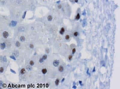 Immunohistochemistry (Formalin/PFA-fixed paraffin-embedded sections) - Anti-SNRP70 antibody (ab51266)