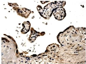 Immunohistochemistry (Formalin/PFA-fixed paraffin-embedded sections) - PDGF BB antibody [MM0014-5F66] (ab51869)