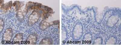 Immunohistochemistry (Formalin/PFA-fixed paraffin-embedded sections)-gamma Catenin antibody(ab52229)