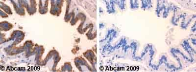 Immunohistochemistry (Formalin/PFA-fixed paraffin-embedded sections)-ERAB antibody(ab52243)