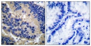 Immunohistochemistry (Paraffin-embedded sections) - Anti-Caspase-3 antibody (ab52293)