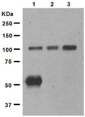 Western blot - Anti-Ionotropic Glutamate receptor 2 antibody [EP966Y] (ab52932)