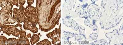 Immunohistochemistry (Formalin/PFA-fixed paraffin-embedded sections) - Hsp90 alpha antibody (ab53110)